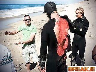 Australian diver after a bad encounter with a great white shark.